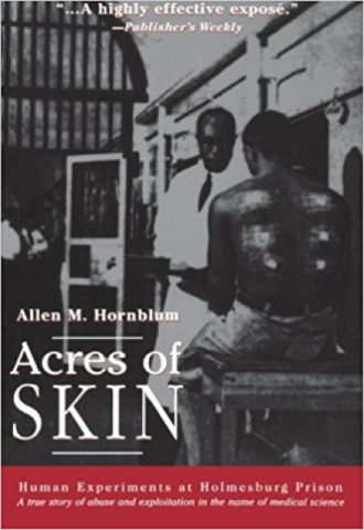 Acres of Skin Human Experiments at Holmesburg Prison_440x640